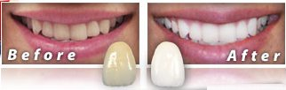 Idol White Teeth Whitening Review Before After